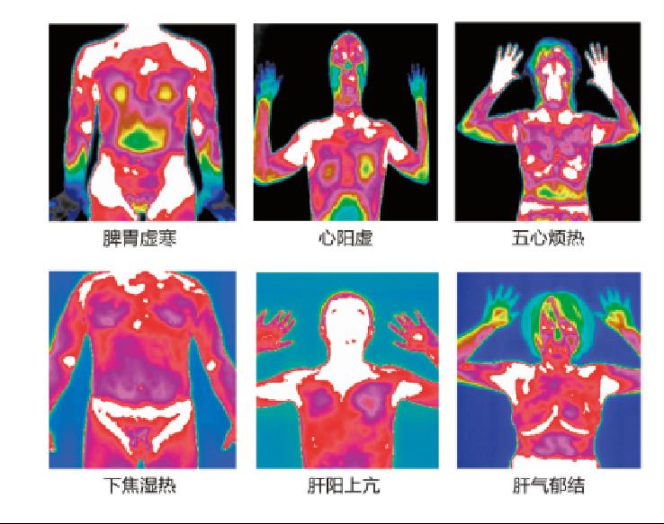 中医辩证可视化设备